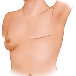 Реконструкции на гърдата след мастектомия
