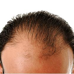 Безиглена мезотерапия на коса