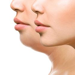Премахване на двойна брадичка