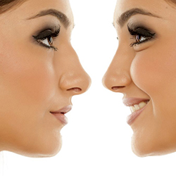 Корекция на върха на носа