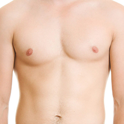 Оперативно лечение на гинекомастия