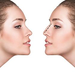 Реконструкции на носа